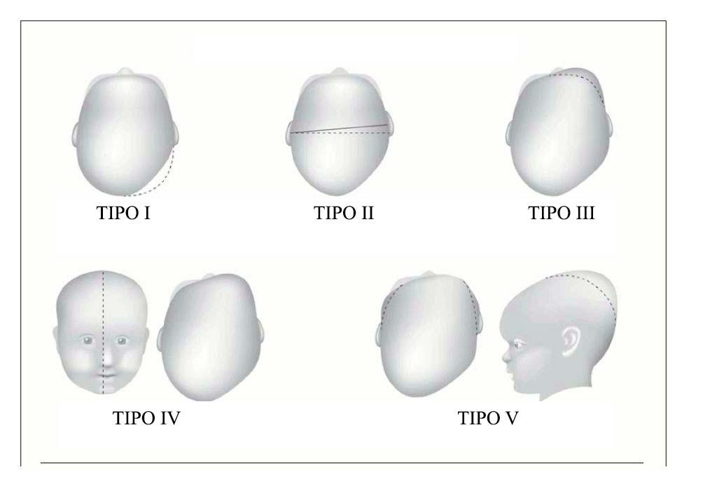 plagiocefalia-TIPI.jpg
