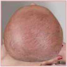 Deformità Craniche, Plagiocefalia Posizionale