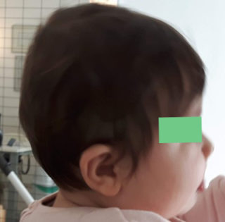 Risultati trattamento plagiocefalia, Plagiocefalia Posizionale